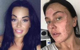 Luộc trứng theo ''công thức mới'' trên TikTok, gái xinh bỏng nặng mặt và cổ
