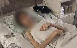 Thiếu niên 16 tuổi nặng 30kg đi cấp cứu trong bộ dạng thảm thương, biết nguyên nhân bác sĩ liền gọi cảnh sát bắt giữ người cha