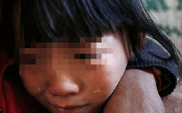 """Bé gái tố cáo hành vi đồi bại của bạn trai mẹ, không ngờ chị gái cũng trải qua """"địa ngục"""" như mình"""