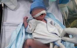 Biến phòng bệnh thành phòng sinh trong chốc lát để đón bé trai sản phụ mắc COVID-19 chào đời