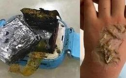 Smartwatch phát nổ khiến bé gái 4 tuổi bị bỏng