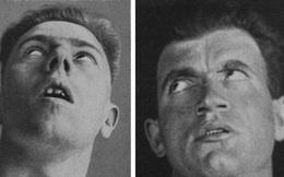 Viêm não buồn ngủ - một trong những dịch bệnh khó hiểu nhất của thế kỷ 20!