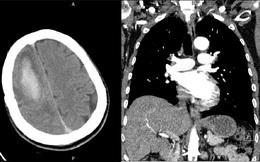 Người đàn ông suýt tử vong vì tắc động mạch phổi có xuất huyết não