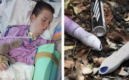 Xịt 7 chai khử mùi vào mũi cho ''phê'', thiếu nữ 16 tuổi ngộ độc dẫn đến chết não và phải sống thực vật suốt đời