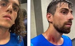 Trận đấu ở Ligue 1 bị hủy bỏ vì các cổ động viên tấn công cầu thủ