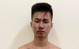 Mâu thuẫn trong lúc chơi bi-a, nam thanh niên rút dao đâm chết người