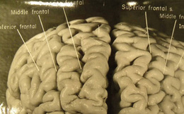 Câu chuyện kỳ lạ về bộ não của Albert Einstein