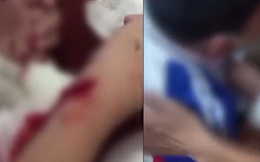Học sinh tiểu học viết chữ xấu bị cô giáo rạch tay gây chấn động dư luận Trung Quốc