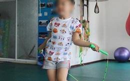 Bị mẹ ép nhảy dây 3000 cái/ngày, bé gái 13 tuổi suýt hỏng đầu gối