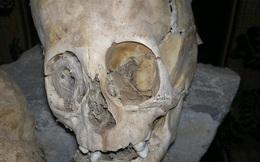 """Nhà khảo cổ học phát hiện hộp sọ khổng lồ, kết quả trả về khiến tất cả """"chết lặng"""": Đây không phải ADN của con người"""
