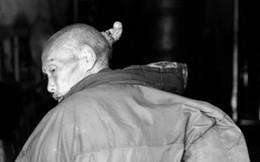 Cụ ông 80 tuổi đầu bỗng dưng mọc sừng