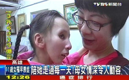 Cô bé 11 tuổi mắc bệnh lão hóa sớm