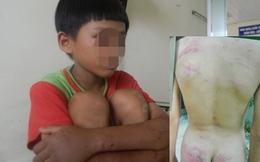 Quảng Ngãi: Một học sinh giỏi bị cha hành hạ dã man