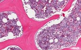 Ghép tủy xương trị HIV