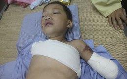 Trêu gấu, bé trai 5 tuổi bị cắn nát 2 tay