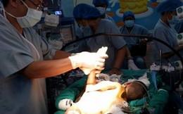 Phẫu thuật tách thành công cặp song sinh dính liền tim, gan