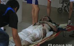 Tin đặc biệt vụ nổ kinh hoàng: Nhiều nạn nhân nhập viện bỏng