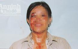 Giám đốc đánh vợ trọng thương phải nhập viện