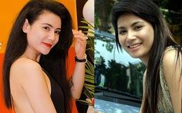 """""""Nghi án"""" diễn viên Quỳnh Hoa cũng theo trào lưu độn cằm"""