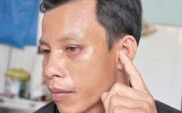 Một công an viên làm dân thủng màng nhĩ, bầm hốc mắt