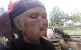 Cụ bà với khối u bã đậu to bằng cái bát trên khuôn mặt