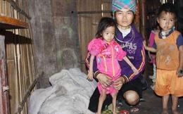 Cô bé H'mông 8 tuổi nặng 6kg mắc trọng bệnh