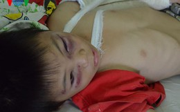 Bé trai bị cha dượng đánh: Có thể phải phẫu thuật sọ