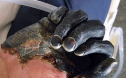 Bác sĩ ám ảnh cảnh bệnh nhân nằm la liệt, tím đen vì dịch hạch