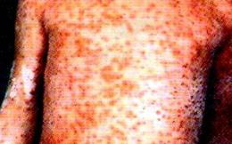 Bệnh sởi: Triệu chứng, diễn biến, nguyên nhân và cách điều trị