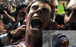 Ảnh chế: Bale ăn mừng giống...khỉ đột