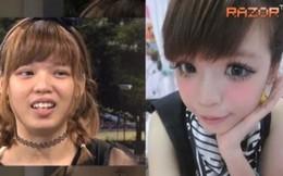 Sự thật đằng sau khuôn mặt xinh đẹp các hot girl châu Á