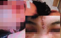 Phẫn nộ vì 2 cô gái bị sàm sỡ giữa Hà Nội