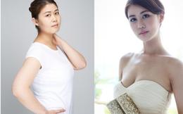 Cô gái Hàn thành hot girl sau khi phẫu thuật mặt và vòng một
