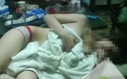 Bị hiếp dâm, có được bồi thường thiệt hại?