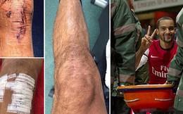 Cận cảnh chấn thương kinh hoàng khiến Walcott mất World Cup
