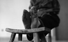 Rợn người với hình ảnh tục bó chân phụ nữ tại Trung Quốc