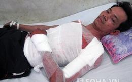 Kinh hoàng từng mảng da bị bỏng của nạn nhân vụ nổ nhà máy thép