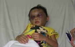 Phẫn nộ bé 4 tuổi bị cha mẹ bạo hành sưng mặt, chấn thương não