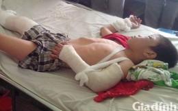 Tin mới nhất vụ bố dượng đánh con riêng của vợ chấn thương sọ não, gãy 2 tay 1 chân