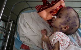 Bức ảnh về trẻ em Việt Nam khiến cả thế giới bàng hoàng