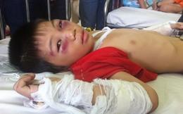 Bé trai 6 tuổi kể về giây phút bị cha dượng đánh nứt sọ, gãy tay và chân