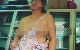 """Bị """"tố"""" xé áo phụ nữ để lộ ngực trần, tổ trưởng dân phố nói gì?"""