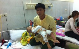 Bé 18 tháng tuổi bị bỏng nước sôi: Xin ra viện vì quá tốn kém