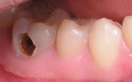 9 bệnh về răng mọi người hay mắc