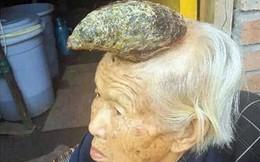 Kinh ngạc cụ bà có chiếc sừng mọc trên đỉnh đầu