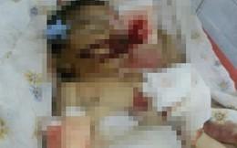 Bé 10 ngày tuổi bị chuột cắn chết trong bệnh viện