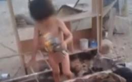 """Bé 2 tuổi sống sót nhờ chó cho """"bú thép"""""""