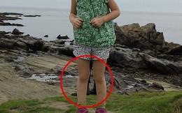 """Tiết lộ sốc từ cha của cô bé trong bức ảnh xuất hiện """"đôi chân ma"""""""