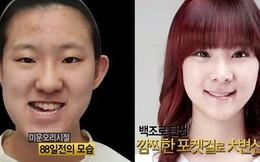 """Cô gái có gương mặt biến dạng """"lột xác"""" sau phẫu thuật thẩm mỹ"""