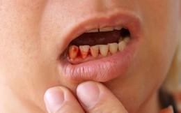 """Sai lầm khi xỉa răng khiến bạn """"rước họa"""" khôn lường"""